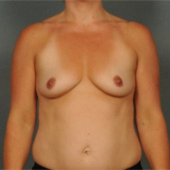 35-44 year old woman treated with Breast Augmentation before 1937003