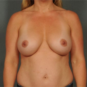 35-44 year old woman treated with Breast Augmentation after 1937003