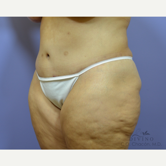 35-44 year old woman treated with Tummy Tuck after 3415578