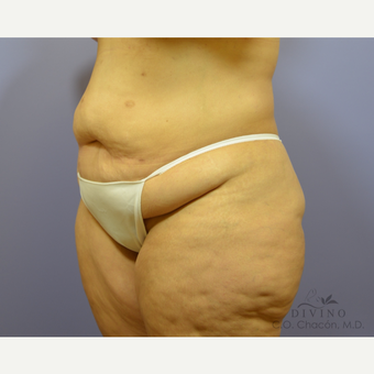 35-44 year old woman treated with Tummy Tuck before 3415578