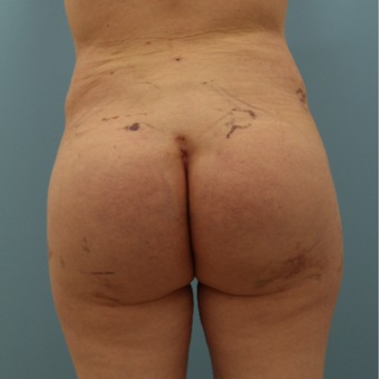 35-44 year old man treated with Butt Augmentation, Hip Implants and Fat injection after 2857187
