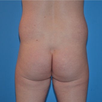35-44 year old man treated with Butt Augmentation, Hip Implants and Fat injection before 2857187