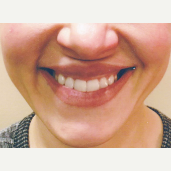 39 year old woman treated with Perlane for Gummy Smile before 3056417