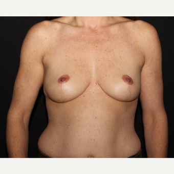 41 year old woman treated with Breast Reduction after 2999955