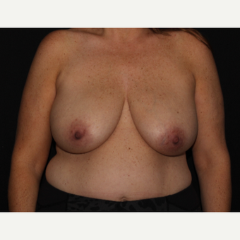 41 year old woman treated with Breast Reduction before 2999955