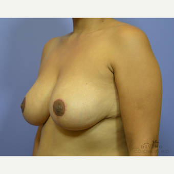 35-44 year old woman treated with Breast Lift after 3420110