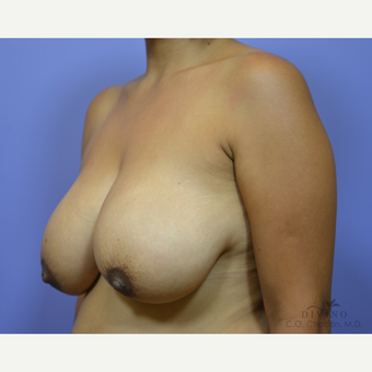 35-44 year old woman treated with Breast Lift before 3420110