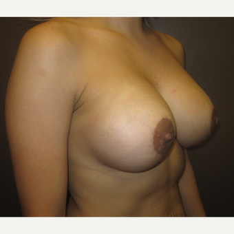 35-44 year old woman treated with Breast Lift with Implants after 3321206