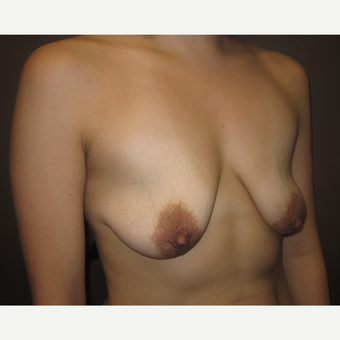 35-44 year old woman treated with Breast Lift with Implants before 3321206