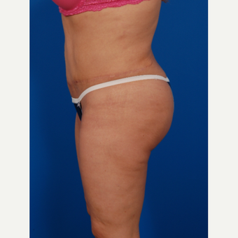 35-44 year old woman treated with Brazilian Butt Lift after 3576851