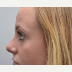 18-24 year old woman treated with Rhinoplasty after 3747741
