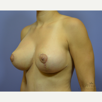 25-34 year old woman treated with Breast Lift after 3386496