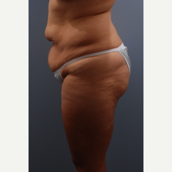 35-44 year old woman treated with Tummy Tuck before 3584085