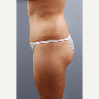 35-44 year old woman treated with Tummy Tuck after 3584085