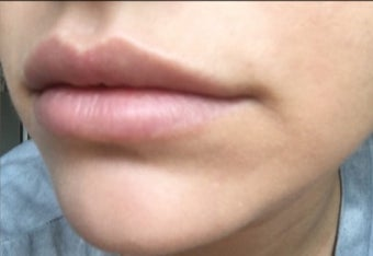 18-24 year old woman treated with Lip Augmentation after 2847439