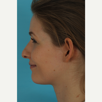 25-34 year old woman treated with Rhinoplasty before 3629421