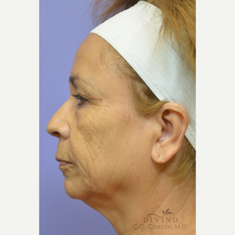 55-64 year old woman treated with Facelift before 3329640