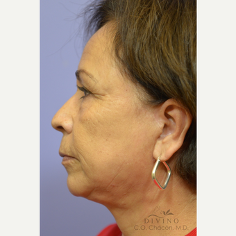 55-64 year old woman treated with Facelift after 3329640