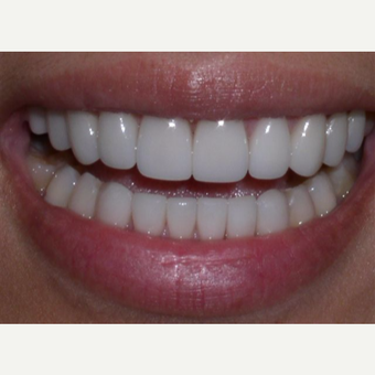 Nine porcelain veneers on her upper teeth and six veneers on the lower produced this result. after 3327195