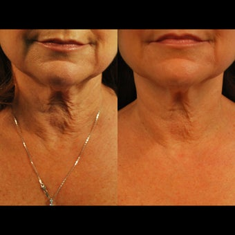 55-64 year old woman treated for Exilis