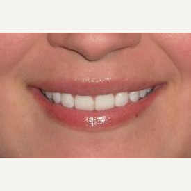 29 year old woman treated with Juvederm injections in the lips after 3837270