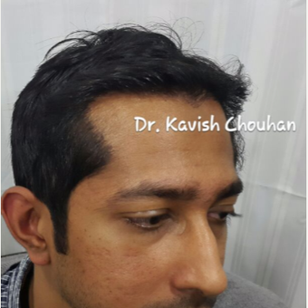 31 year old man treated with FUE Hair Transplant after 2840051