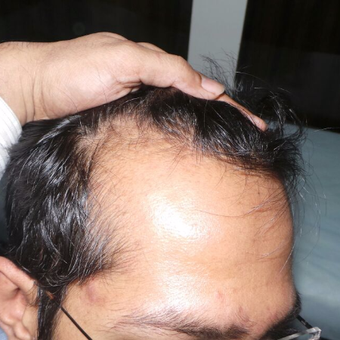 31 year old man treated with FUE Hair Transplant before 2840051
