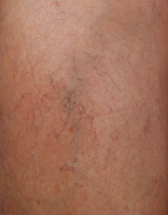 Sclerotherapy for Leg Veins after 1357681