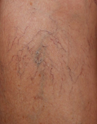 Sclerotherapy for Leg Veins before 1357681