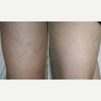 35-44 year old woman treated with Sclerotherapy before 3201179