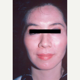 25-34 year old woman treated with Chemical Peel after 3543297
