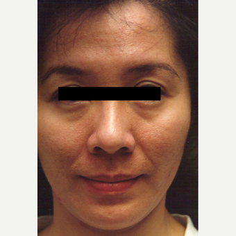 25-34 year old woman treated with Chemical Peel before 3543297