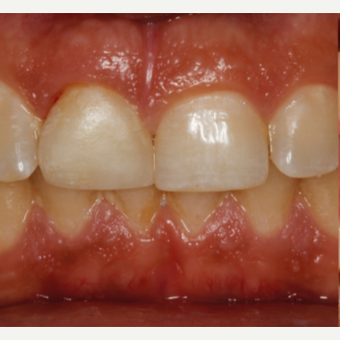 25-34 year old woman treated with Dental Implants after 2711868