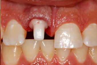 25-34 year old woman treated with Dental Implants 2711868