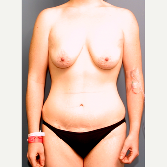 18-24 year old woman treated with Breast Lift with Implants before 3475856