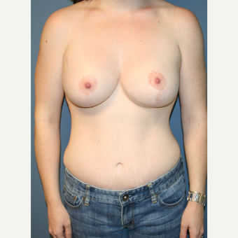 18-24 year old woman treated with Breast Lift with Implants after 3475856
