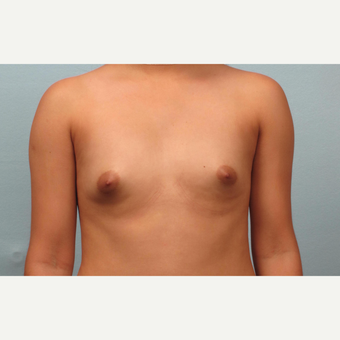 18-24 year old woman treated with Breast Augmentation before 3245288