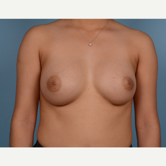 18-24 year old woman treated with Breast Augmentation after 3245288