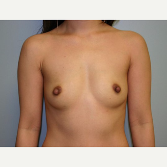 Breast Augmentation before 3560695