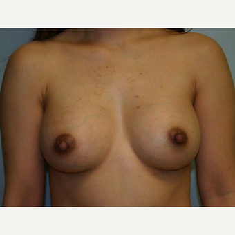 Breast Augmentation after 3560695