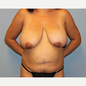 35-44 year old woman treated with Mommy Makeover before 3589429