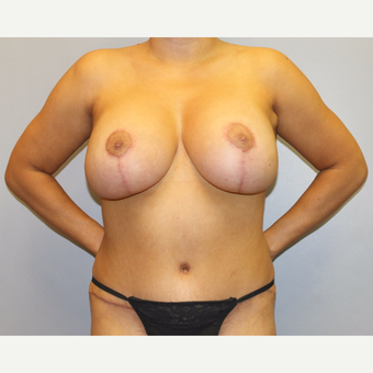 35-44 year old woman treated with Mommy Makeover after 3589429