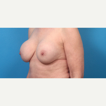 55-64 year old woman treated with Breast Implant Revision before 3340112