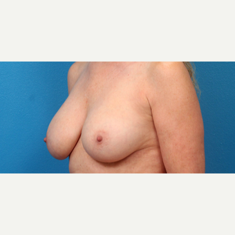 55-64 year old woman treated with Breast Implant Revision after 3340112