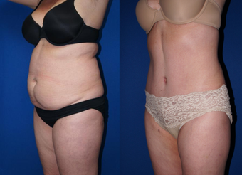 Smart Lipo of abdomen and tummy tuck before 1063363