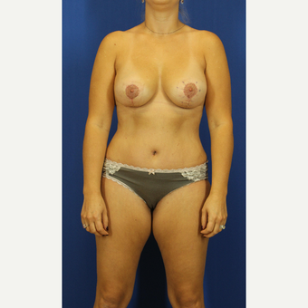 35-44 year old woman treated with Mommy Makeover after 3748211