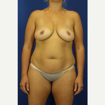 35-44 year old woman treated with Mommy Makeover before 3748211