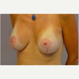 Breast Lift with Implants after 3058255