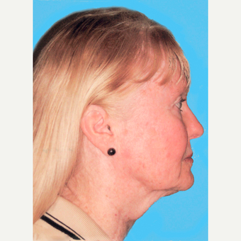 Facelift before 3824867