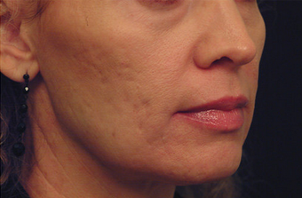 YAG Laser Skin Tightening 490522